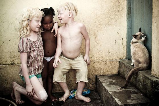 Foto: Alexandre Severo/JC Imagem Data: 20/07/2009 Assunto: Familia de albinos da comunidade do V8, em Olinda
